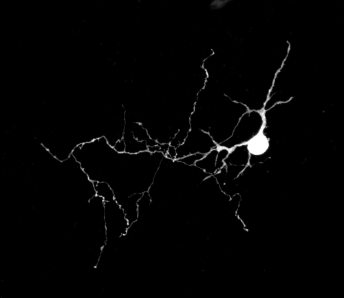 ML Interneuron filled with Alexa 488